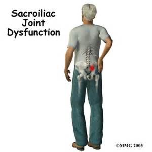 s.i. joint dysfunction. picture 1
