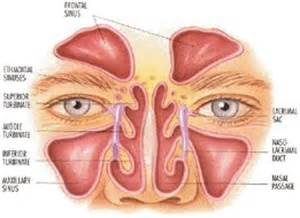 bacterial sinus infection picture 9