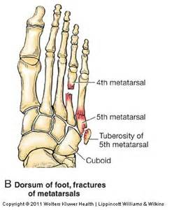 5th metatarsal pain on weight bearing picture 13