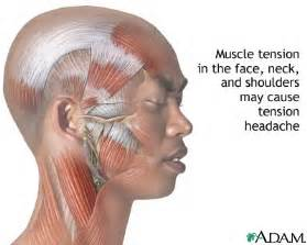 definition of muscle tension picture 5