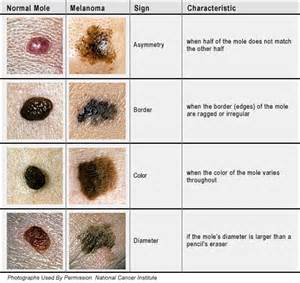 different types of skin cancer picture 14