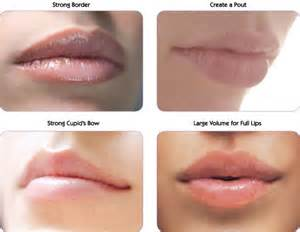 lip injections cost picture 10