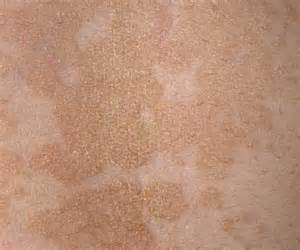brown patches on skin picture 6