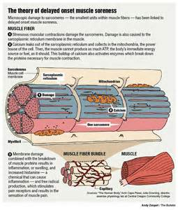 muscle pain causes picture 11