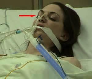 synthetic marijuana liver damage picture 2