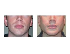 male enhancement surgery picture 3