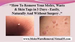 at home skin tag removal picture 3