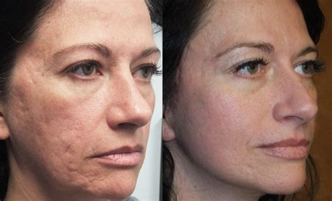cost of co2 laser for acne scars picture 2