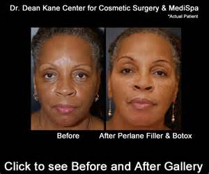 face lift skin turn black picture 2