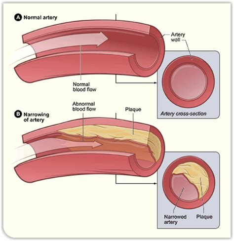 fatty deposits in penis blood flow picture 1