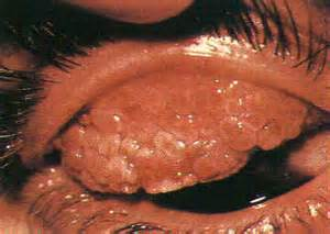 bacterial conjunctivitis and sore throat picture 13