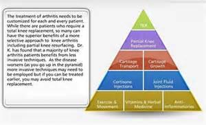 arthritis joint treatment picture 9