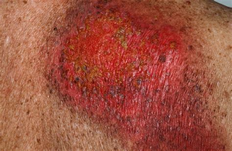herpes 150 picture 3