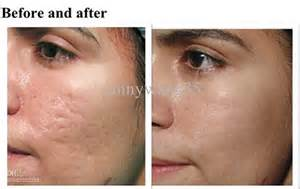 skin needling reviews picture 1