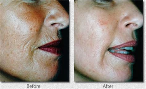 derma rolling before and after pics picture 3