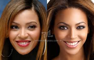 procedure straightens teeth on tyra show picture 19