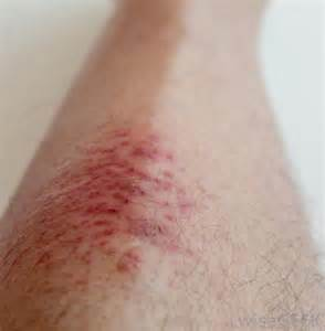 burning painful skin area picture 6