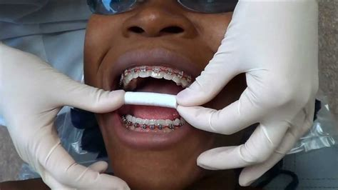 after the dentist take out your teeth picture 6