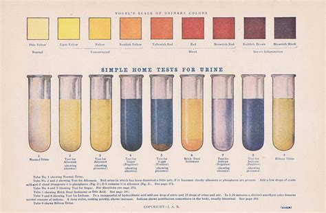 what does your urine look like when you picture 10
