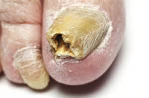 yellow nail toe fungus picture 1