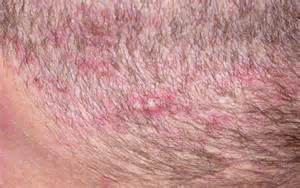 abraxane and acne on scalp picture 9