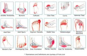 heel skin is caused by picture 9