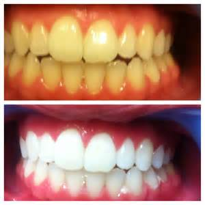 do teeth continue to whiten after treatment is finished picture 3
