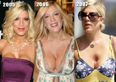 breast enhancement doctor dallas picture 1