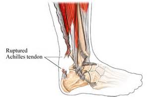 ankle joint effusion and ruptured achilles tendon picture 10