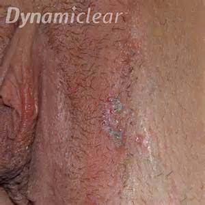 will herpes spread during picture 21