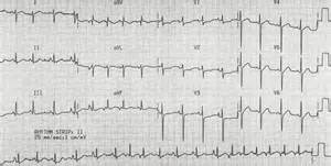 ventricular tachycardia treatment with herbs picture 1