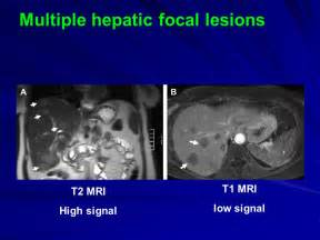 focal lesions in the liver are consistent with picture 10