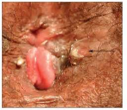 general warts picture 3