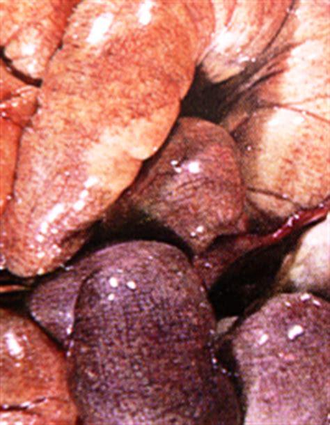 colon gas picture 13