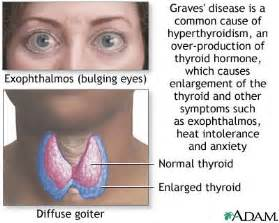 british thyroid foundation and graves disease symptoms picture 2