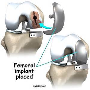 partial knee joint replacement picture 9