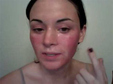 fraxel for acne scars picture 6