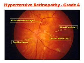 hypothyroidism and retinal hemorrage picture 2