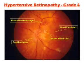 hypothyroidism and retinal hemorrage picture 1