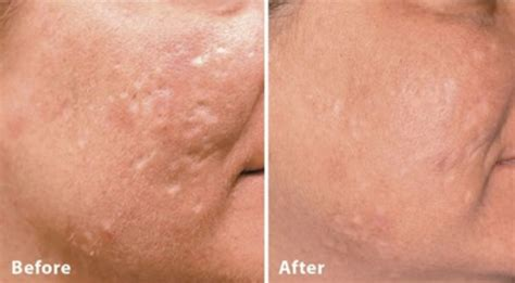 acne dermafillers picture 1
