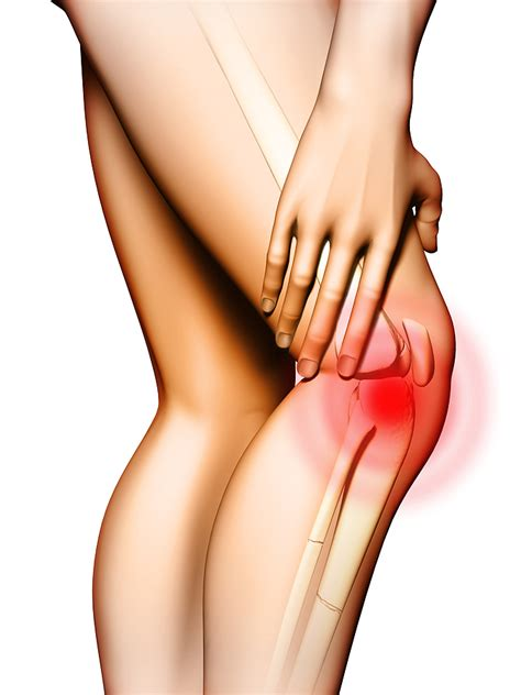 what causes pain in knees picture 5