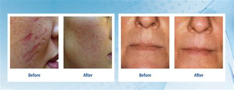 dermapen can it cause skin to look worse picture 7