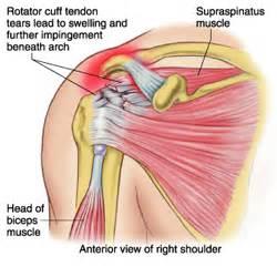 diagnose shoulder muscle tear picture 9
