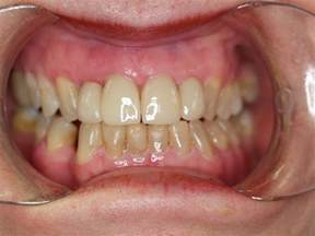 discolored teeth picture 10