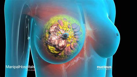 dissolve breast tumors picture 1