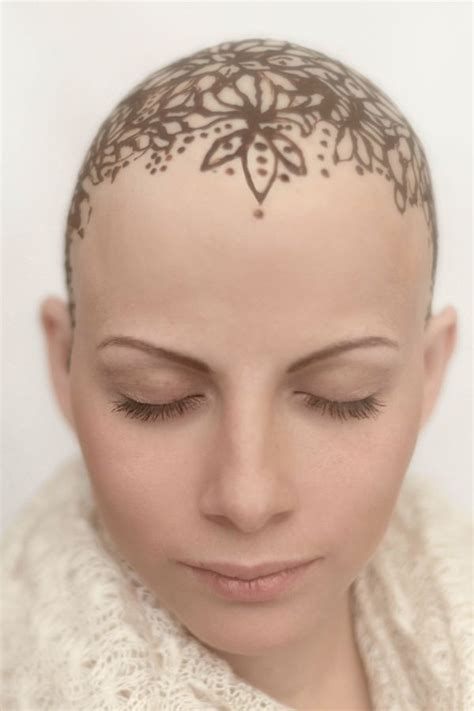 Bald hair for woman picture 5
