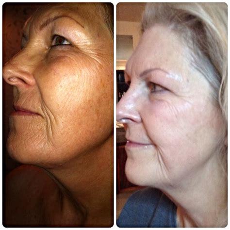 anti aging clinic albuquerque picture 14