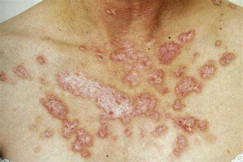 discoid rash with candida picture 2