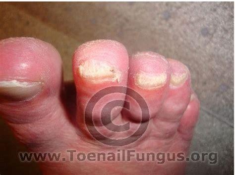 will lysol kill toenail fungus picture 3