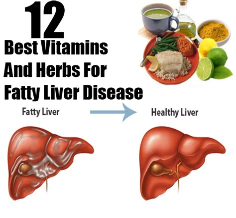 what is fatty liver picture 14